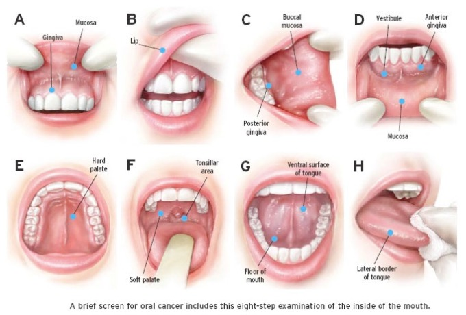 Signs and symptoms Oral Cancer